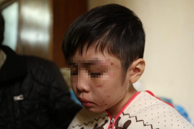 ĐBQH nói bố đẻ bé trai bị hành hạ