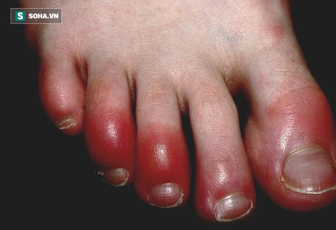 Căn bệnh mùa đông nhiều người mắc sẽ nguy hiểm tính mạng nếu có 4 dấu hiệu nhiễm trùng sau 1