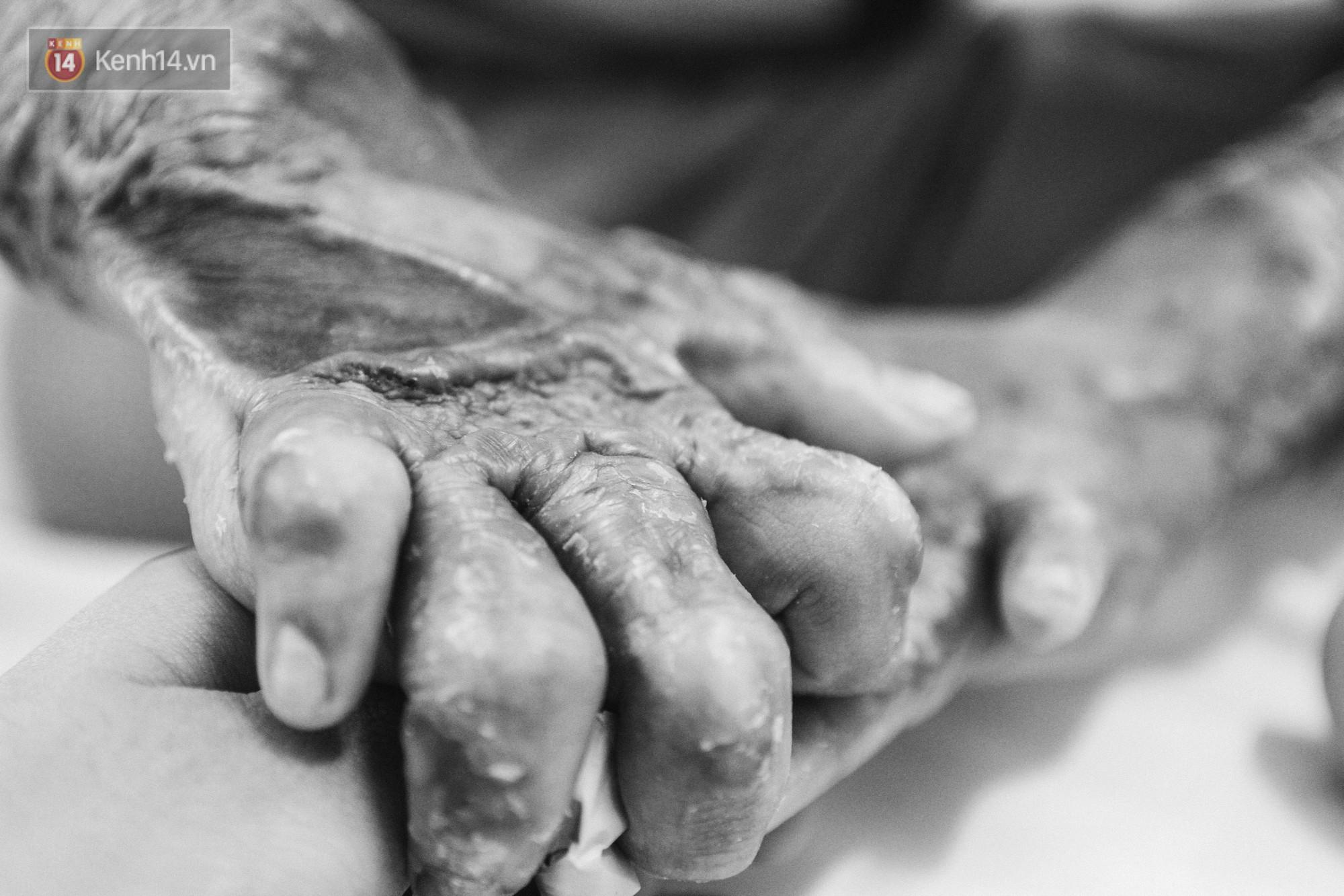 Xót xa những vết bỏng đau đớn trên người bé trai 6 tuổi: Ngày con phải cưa chân là ngày bạn bè vào lớp 1 3
