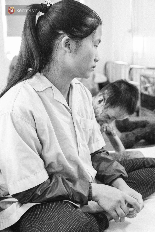 Xót xa những vết bỏng đau đớn trên người bé trai 6 tuổi: Ngày con phải cưa chân là ngày bạn bè vào lớp 1 2
