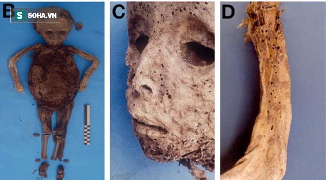 Xác ướp 450 tuổi hé lộ bí ẩn căn bệnh đáng sợ trong quá khứ 1