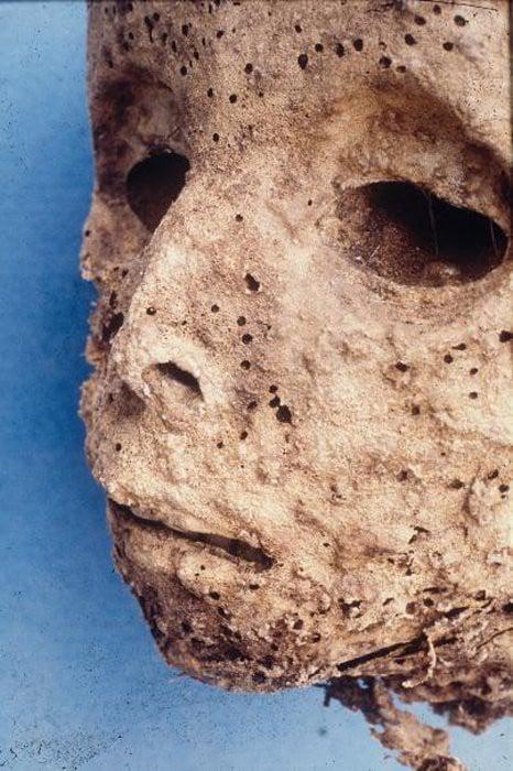 Xác ướp 450 tuổi hé lộ bí ẩn căn bệnh đáng sợ trong quá khứ - Ảnh 3.