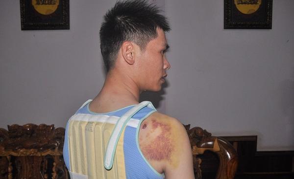 Hình ảnh Khởi tố con trai bí thư xã bắn người nhập viện số 1