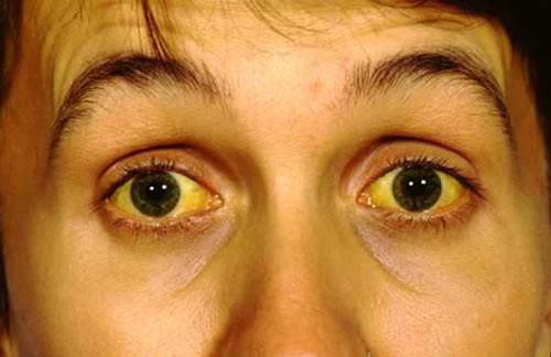 Dấu hiệu cảnh báo gan đang chứa đầy độc tố, nhiễm độc: Số 2 và 4 nhiều người gặp - Ảnh 2.