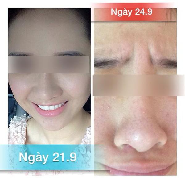 Khuôn mặt đáng sợ của cô gái khiến chị em dè chừng với mỹ phẩm không rõ nguồn gốc  - Ảnh 8.