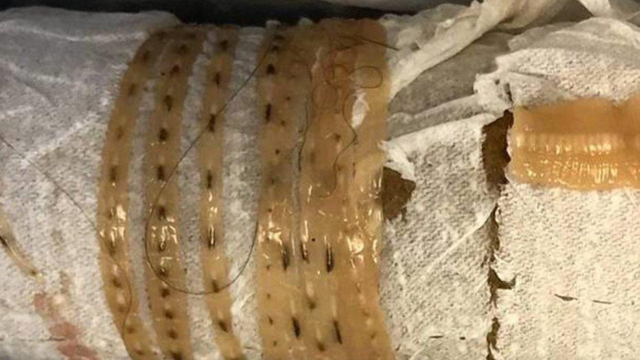 Ăn sushi triền miên tháng ngày, người đàn ông tá hỏa khi phát hiện con sán dây dài 167cm trong bụng - Ảnh 2.