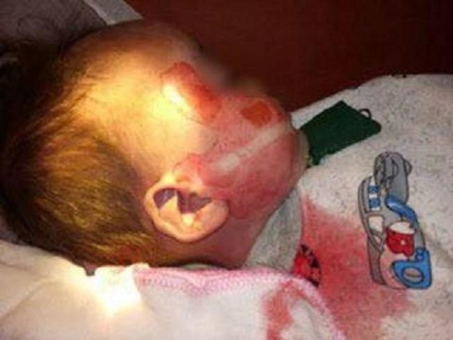 Bộ Y tế yêu cầu làm rõ vụ bé trai 15 tháng tuổi tử vong, người có nhiều vết thương 1