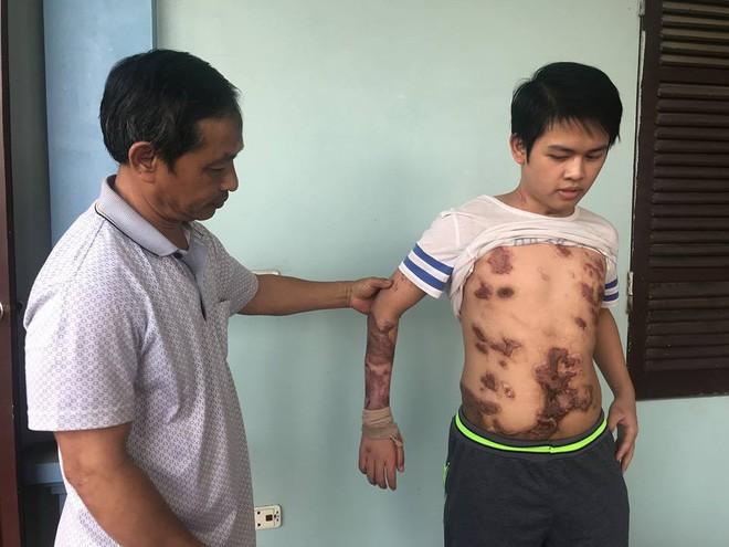 Cậu bé 16 tuổi sống sót sau vụ cháy xưởng bánh kẹo khiến 8 người tử vong ở Hà Nội bây giờ ra sao 1