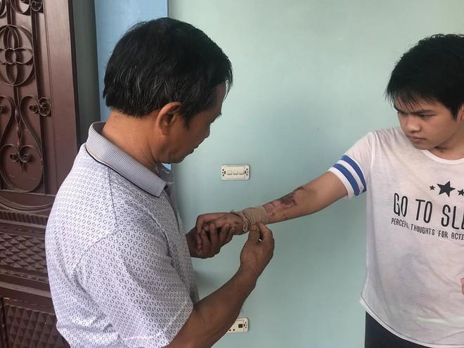 Cậu bé 16 tuổi sống sót sau vụ cháy xưởng bánh kẹo khiến 8 người tử vong ở Hà Nội bây giờ ra sao 5