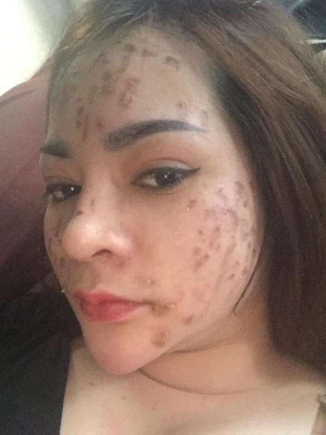 Nghe lời nhân viên spa chấm nám cho đẹp da, cô gái trẻ bị thui cháy loang lổ cả mặt 3