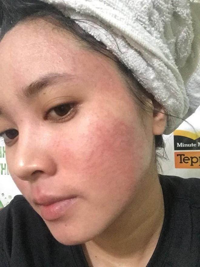 Nghe lời nhân viên spa chấm nám cho đẹp da, cô gái trẻ bị thui cháy loang lổ cả mặt - Ảnh 9.
