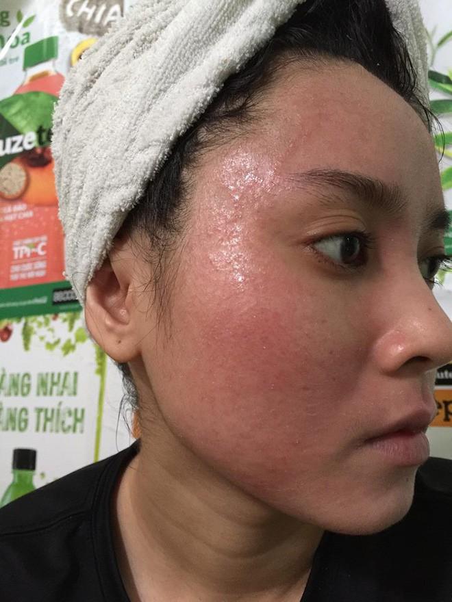 Nghe lời nhân viên spa chấm nám cho đẹp da, cô gái trẻ bị thui cháy loang lổ cả mặt - Ảnh 10.