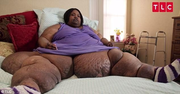 Hình ảnh Kỳ lạ cô gái ăn uống vô độ từ năm 10 tuổi, giờ đã béo phì nặng gần 3 tạ số 3