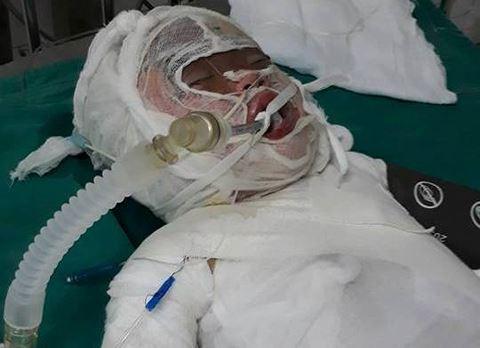 Theo mẹ ra đồng muối, bé gái 2 tuổi bị bỏng nặng khi rơi vào hố vôi đang sôi 1
