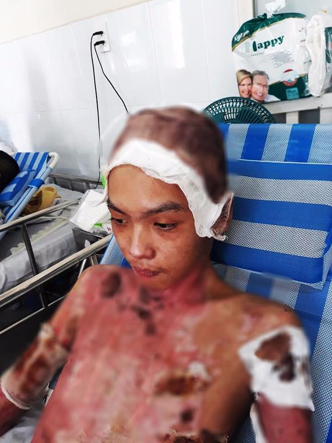 Thương cha không đủ sức khỏe, cậu bé 16 tuổi hai lần lóc da cứu anh ruột bị lửa dầu thiêu sống 2