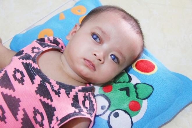Xót cảnh người mẹ đi tìm ánh sáng cho đứa con trai mù 6 tháng tuổi, để em gái 12 tuổi nghỉ học vì nợ nần 2