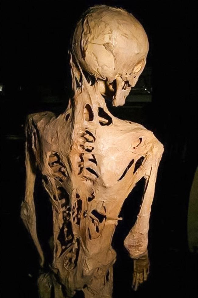 7 căn bệnh lạ lỡ mắc phải chỉ có phát khóc bởi bác sĩ cũng phải bó tay - Ảnh 1.