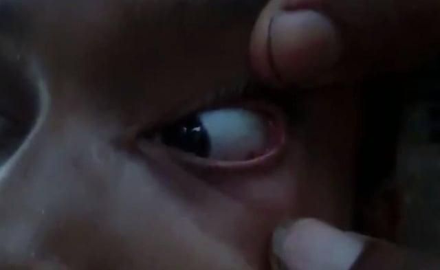 Hình ảnh Bác sĩ sốc nặng khi phát hiện cả ổ kiến trong mắt bé gái số 1