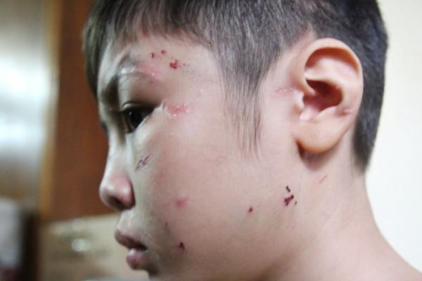 Vụ bạo hành dã man con trai 10 tuổi: Bố đẻ bị khởi tố thêm tội danh mới sau kết quả giám định thương tật 3