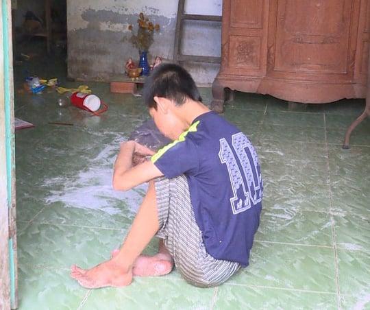 Hình ảnh Giải cứu bé trai khuyết tật nghi bị mẹ ruột ngược đãi số 1