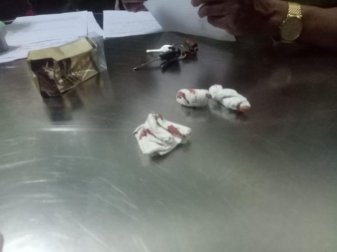 Clip phóng viên bị đánh dã man trong quán bar ở Đà Nẵng được hé lộ 2