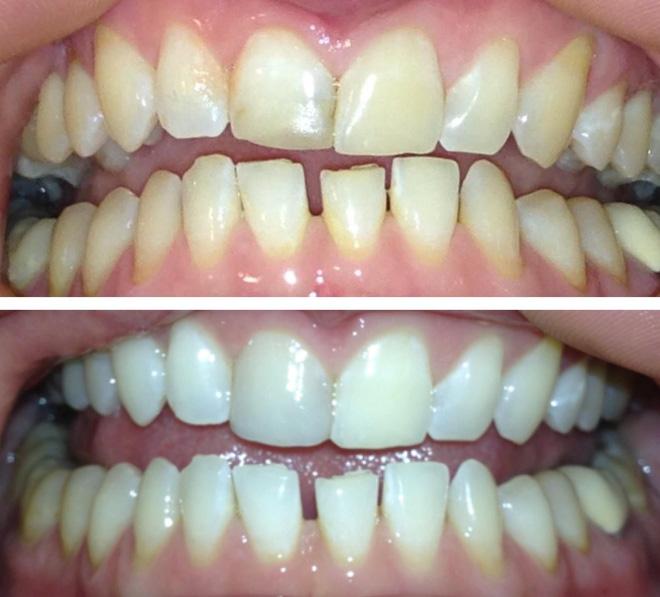 8 cách làm trắng răng hiệu quả và an toàn tại nhà: Lưu lại để dùng khi cần đến 2