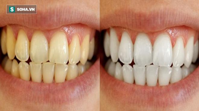 8 cách làm trắng răng hiệu quả và an toàn tại nhà: Lưu lại để dùng khi cần đến 1
