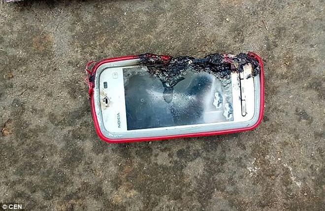 Sử dụng điện thoại trong khi sạc, tai họa ập xuống đầu cô gái trẻ khiến ai cũng bàng hoàng 2