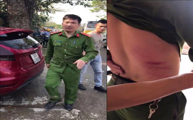 Hà Nội: Công an phường bị xe tải đâm bị thương khi giải quyết trật tự 1