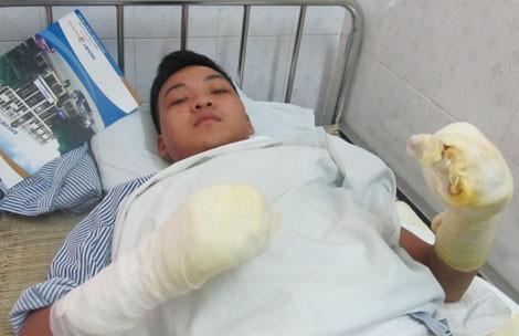 Chàng lính trẻ từ bỏ giấc mơ làm chiến sĩ PCCC vì gặp nạn trong lúc cứu hỏa: