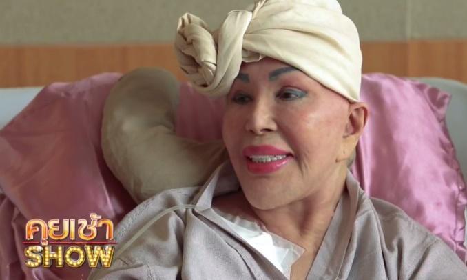 Cụ bà 81 tuổi bỏ tiền phẫu thuật thẩm mỹ, nhan sắc khiến ai cũng phải choáng váng 3