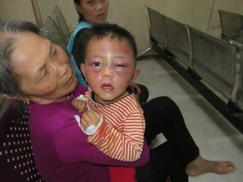 Tin tức mới nhất vụ bé trai 2 tuổi bị cha dượng bạo hành thâm tím mặt mũi 2