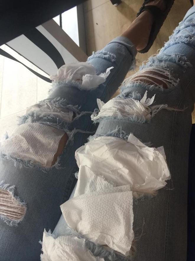 Sợ bạn gái hở hang, thanh niên lấy giấy vá hết lỗ thủng trên quần giữa quán ăn 1
