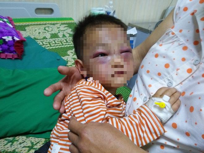 Xót cảnh bé trai 2 tuổi đẻ ra không biết mặt cha, đến khi mẹ lấy chồng thì bị cha dượng đánh đập phải nhập viện cấp cứu 1