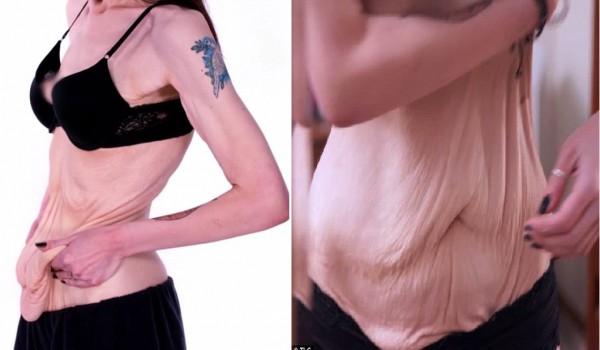 Hậu giảm cân, cô gái bị trầm cảm nặng vì làn da chảy xệ 3
