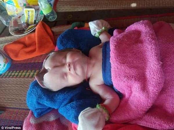 Xót xa cảnh em bé chào đời với đầu biến dạng vì không có hộp sọ 1