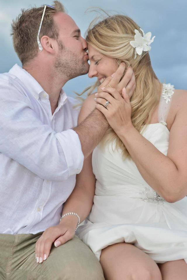 Hy hữu: Cô dâu hói cả đầu vì căng thẳng chuẩn bị đám cưới trong mơ 2
