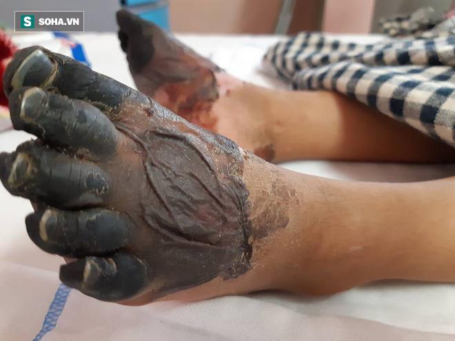 Sự thật về thông tin bé gái ở Lai Châu bị hoại tử chân tay do mắc bệnh Than hiếm gặp 2