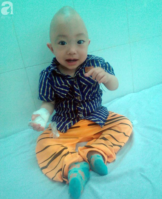 Bé trai 1 tuổi bị hẹp hộp sọ đã phẫu thuật thành công sau khi nhận được gần 50 triệu đồng từ các nhà hảo tâm - Ảnh 2.