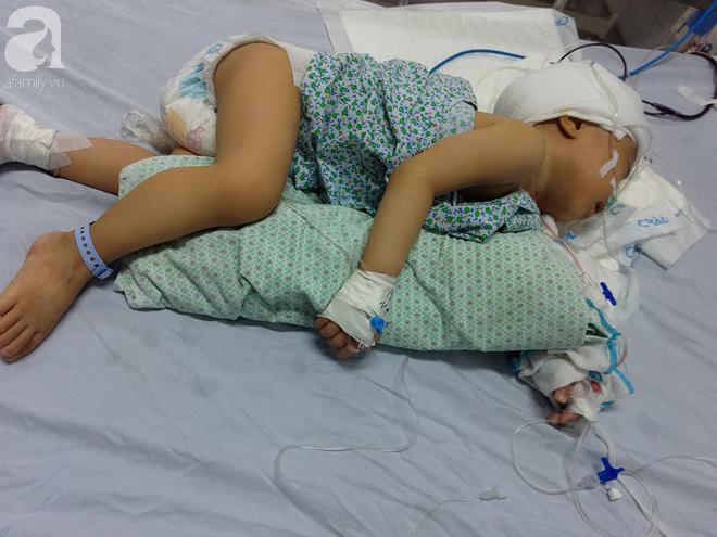 Bé trai 1 tuổi bị hẹp hộp sọ đã phẫu thuật thành công sau khi nhận được gần 50 triệu đồng từ các nhà hảo tâm 3