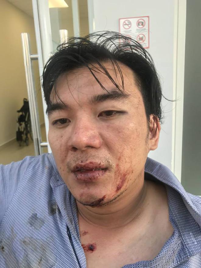 Khách tố bị đánh dã man vì đòi hóa đơn đỏ, công an bảo bị té ngã dẫn đến chấn thương  - Ảnh 1.