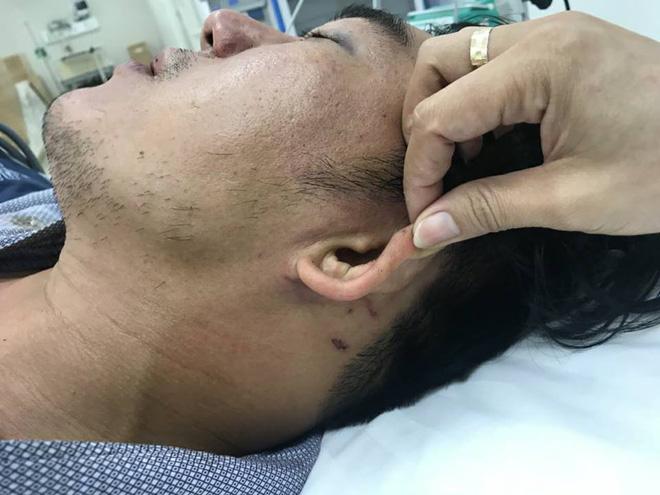Khách tố bị đánh dã man vì đòi hóa đơn đỏ, công an bảo bị té ngã dẫn đến chấn thương 2