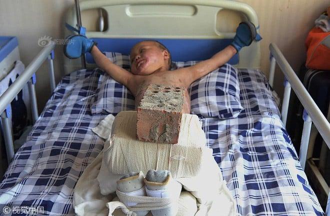 Xót xa chuyện người đàn ông bị vợ bỏ rơi, mỗi ngày dùng 15kg gạch đè lên chân đứa con 5 tuổi để chữa bỏng 2