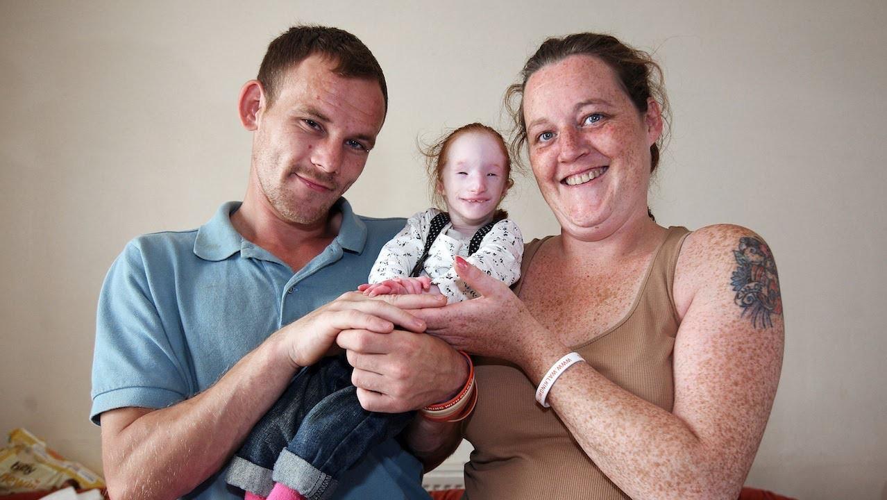 Cuộc đời của cô bé nhỏ nhất thế giới: Bác sĩ nói rằng em chỉ sống được 1 năm, nhưng nghị lực sống đã chiến thắng tất cả 8