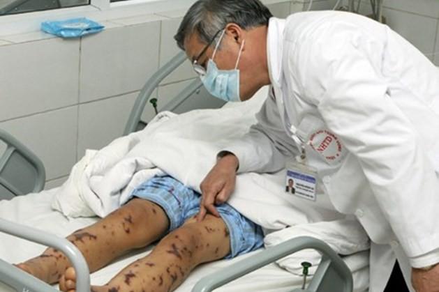 1 người mắc viêm não mô cầu khiến nhiều người phải cách ly: Bệnh này nguy hiểm thế nào? 2