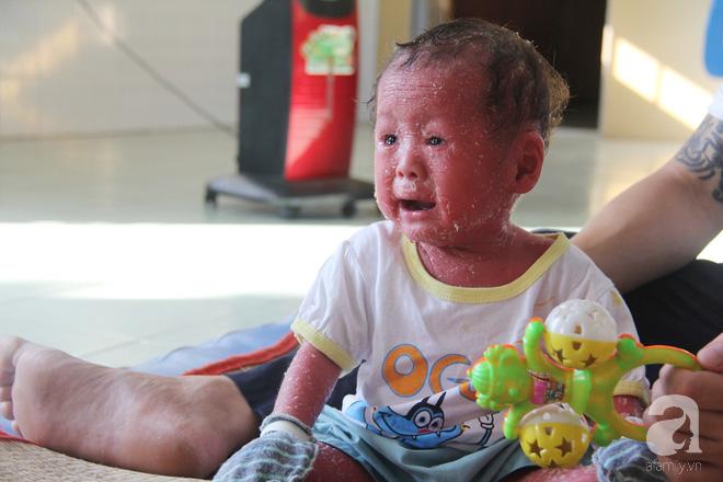 Người đầy vẩy ngứa như da trăn, bé gái 16 tháng tuổi bị bố mẹ bỏ rơi nên không có tiền chữa trị 6