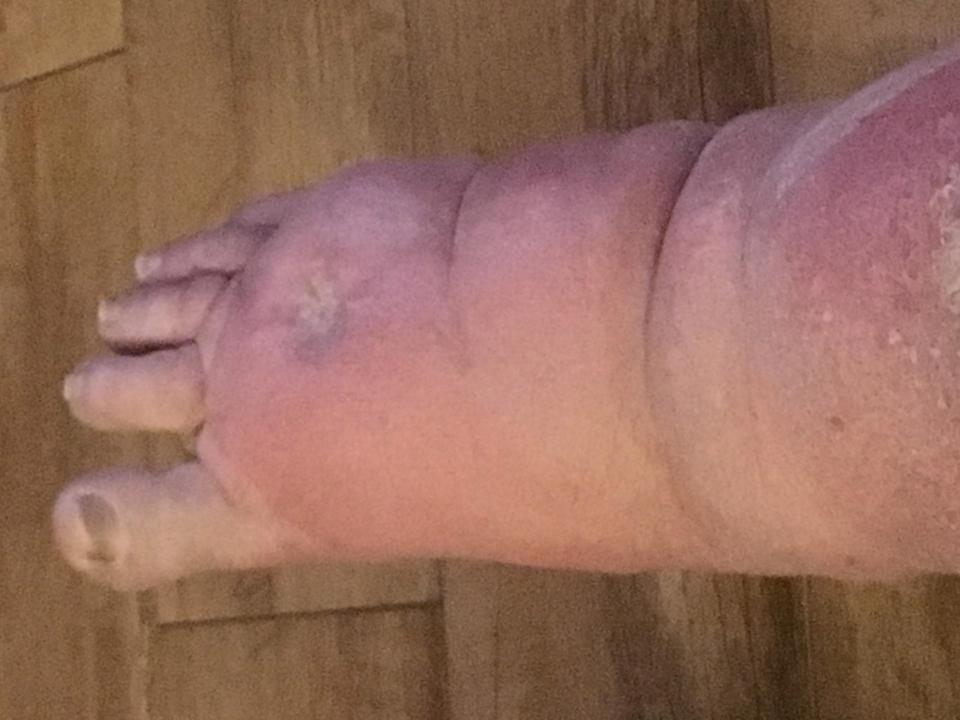 Người đàn ông đang làm vườn thì nhện cắn, 2 ngày sau phát bệnh rồi bị cưa mất một chân 2