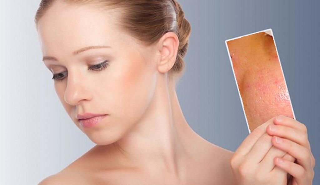 Giữ những thói quen sai lầm này khi rửa mặt khiến da sần sùi, mụn nổi chi chít 3