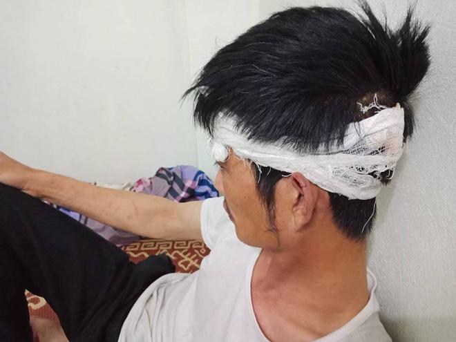 Tài xế taxi Mai Linh bị đánh chảy máu đề nghị cơ quan chức năng làm rõ, xử lý người hành hung mình 2