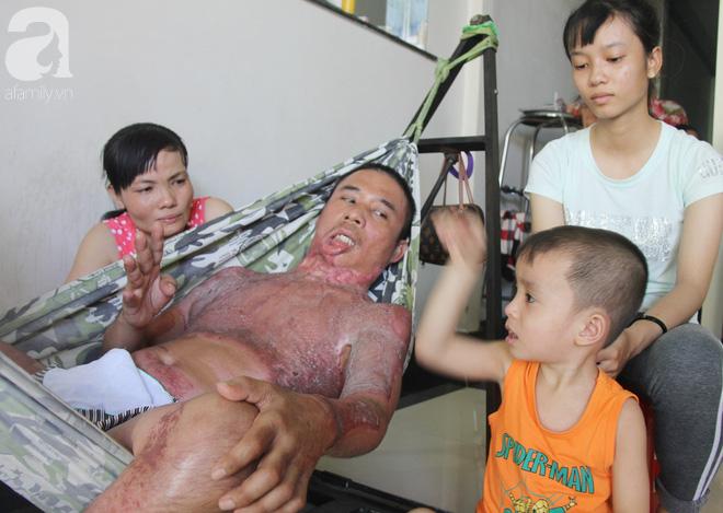 Bị điện giật cháy người không có tiền chạy chữa, bố xót xa nhìn con trai 4 tuổi không nhận ra mình - Ảnh 14.